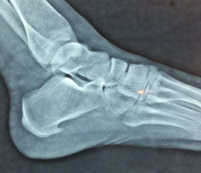 spina calcaneare rx