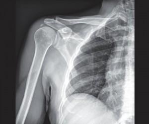 rx calcificazione spalla