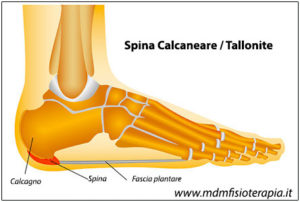 tallonite_spina-calcaneare
