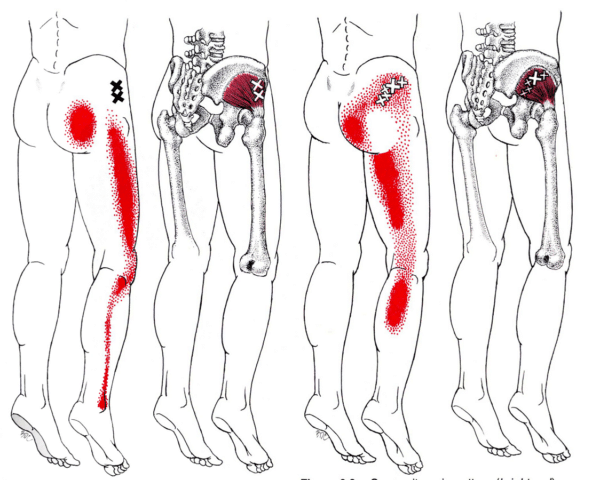 trigger point piriforme