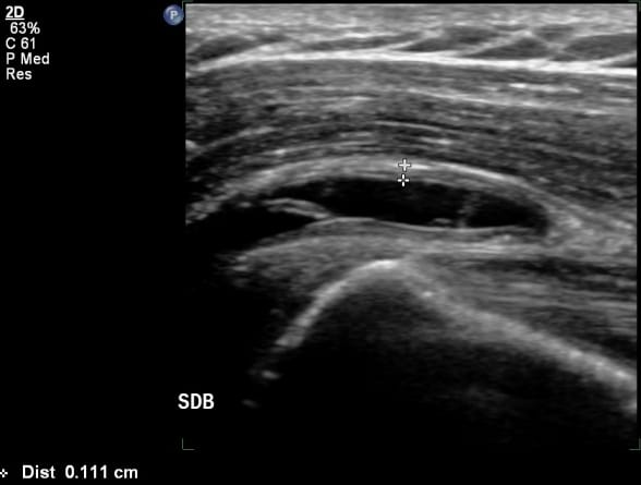 ultrasound guided si joint injection