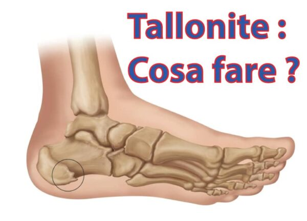 tallonite cosa fare